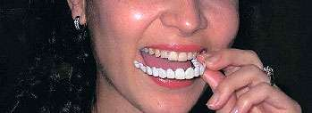 The Snap-on smile attaches to the upper front teeth