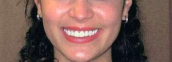 procedure to cosmetic dental patient